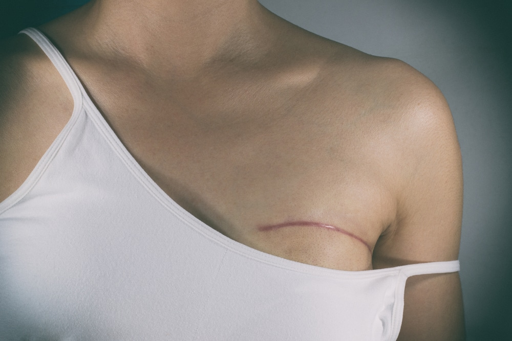 Breast cancer surgery scars