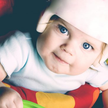 baby with plagiocephaly