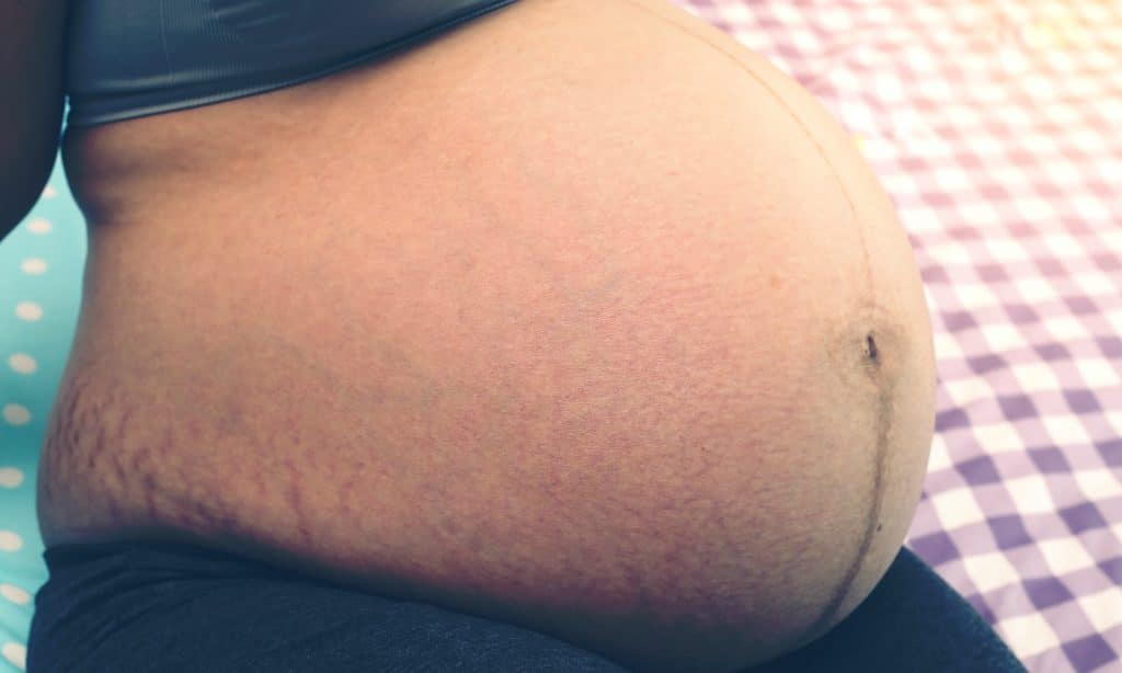 pregnant woman belly with marks